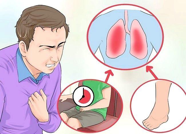 Imaginea intitulată Îndepărtați durerea toracică bruscă la nivelul pieptului 10
