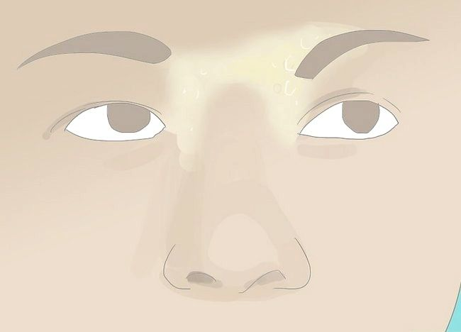 Imagine intitulată Heal Raw Skin Step 14