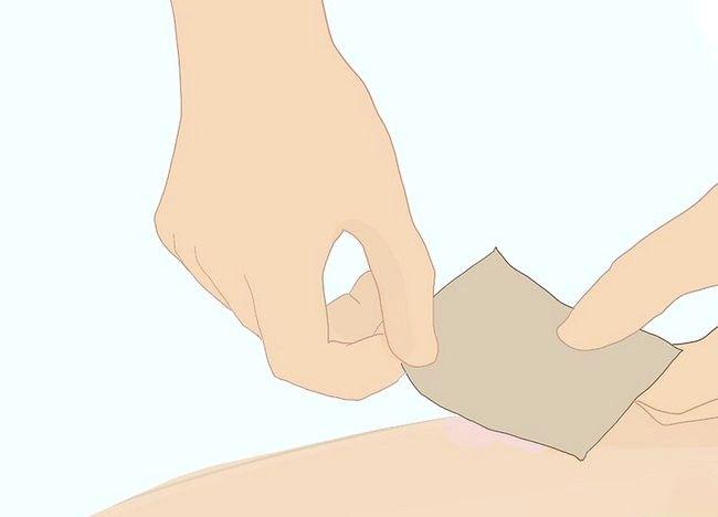 Imagine cu denumirea Heal Raw Skin Step 3