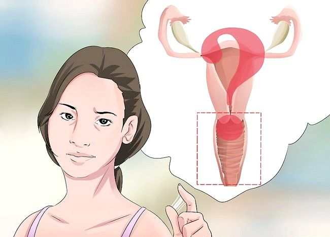 Imaginea cu titlul Diagnostic Pasul 1: Descărcarea vaginală