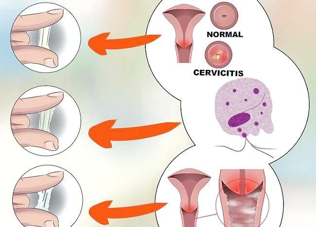 Imagine cu titlul Diagnostic Pasul 6 de descărcare vaginală