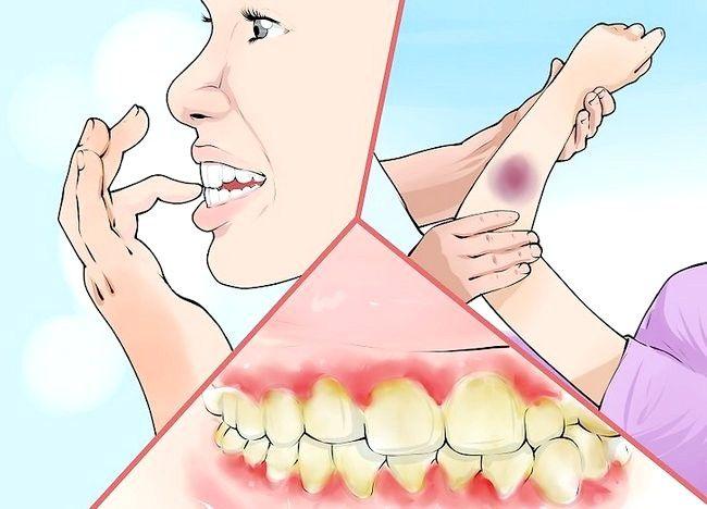 Imagine intitulată Diagnoza și tratarea scurgerilor Pasul 2