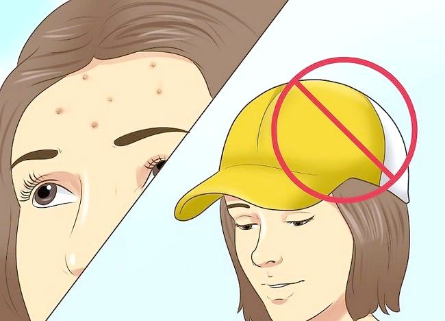 Cum sa preveni acneea de a recolta in acelasi loc vreodata