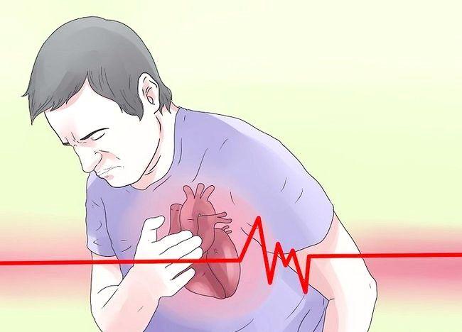 Imaginea intitulată Simptomele spot ale bolii coronariene Pasul 1