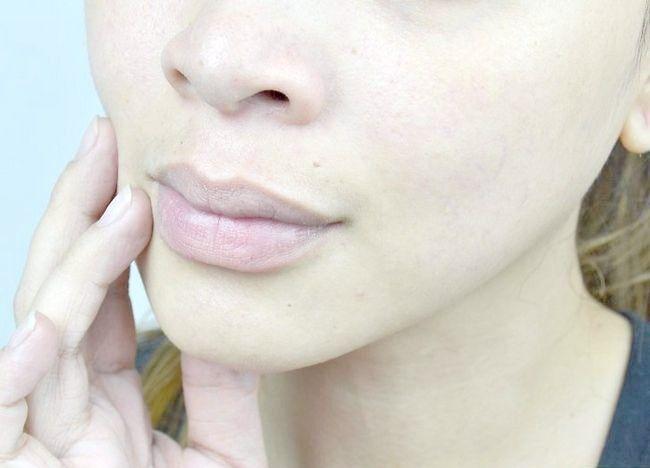 Imagine intitulată Fină curată pentru pielea grasă