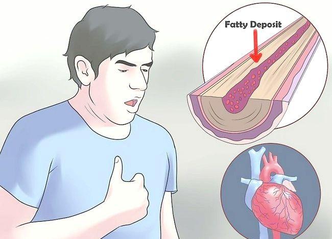 Imaginea intitulată Recunoașterea durerilor de angina pe scară 15