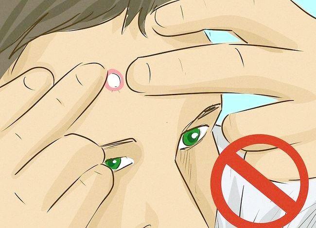 Imaginea intitulată Eliminați chistul pe fața dvs. Pasul 2