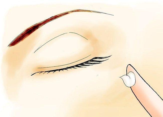 Imaginea intitulata Scapa de acnee adolescenta Pasul 04