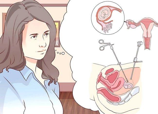 Cum sa scapi de o sarcina ectopica