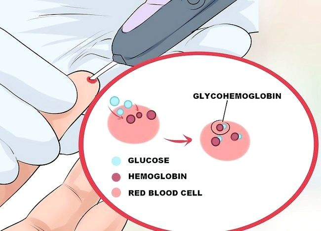 Imaginea intitulată Test pentru diabet Pasul 6