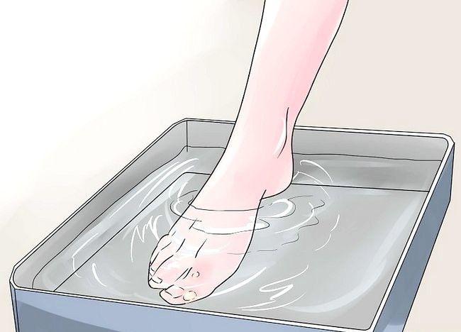 Cum să tratați bolile la picioare