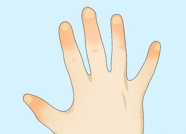 Imaginea intitulată Împiedicați degerul pasului 10Bullet1