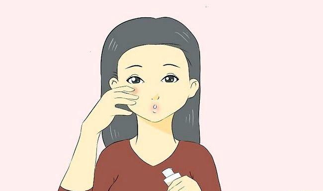 Image cu titlul Tratarea unei arsuri faciale de la un fier curling pentru a preveni cicatricile Pasul 5
